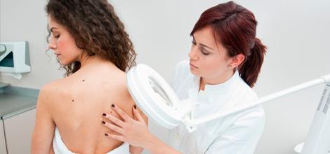 dermatologia-casanovas-revision_lunares