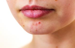 eliminar les cicatrius d'acne